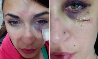 Fue brutalmente golpeada por su novio boxeador