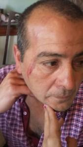 Las lesiones que acusa el padre de la familia.