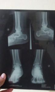 La lesión en su tobillo.